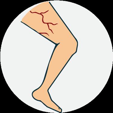 Picioare fără vene varicoase clip art