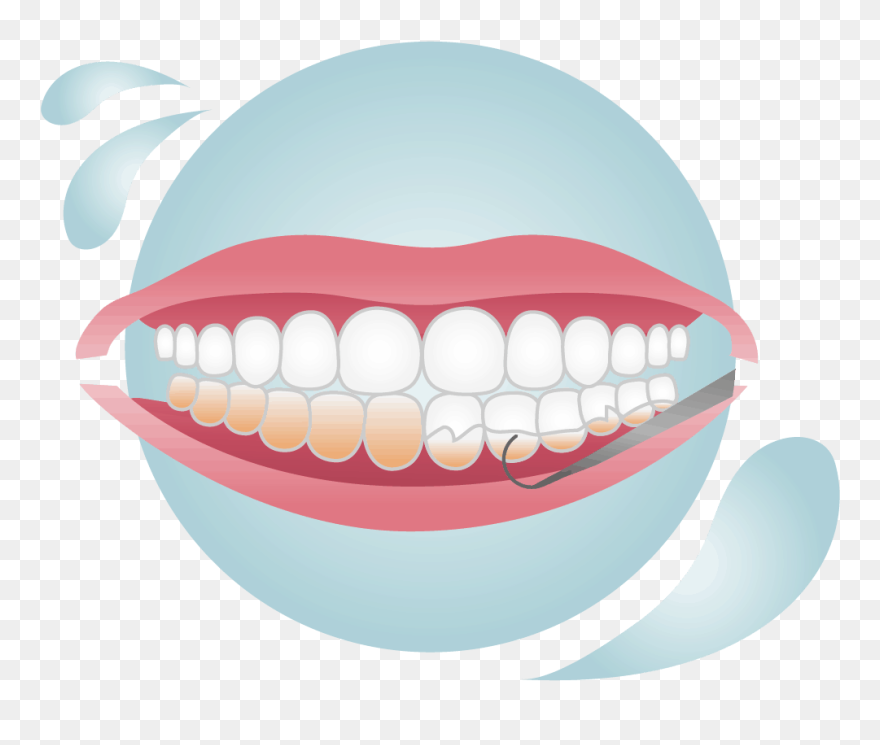 Dental Plaque With Inflammation And Healthy Tooth. Cute Cartoon.. Royalty  Free Cliparts, Vectors, And Stock Illustration. Image 78180677.